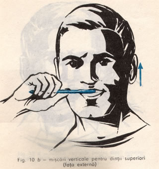 periat vertical dintii superiori